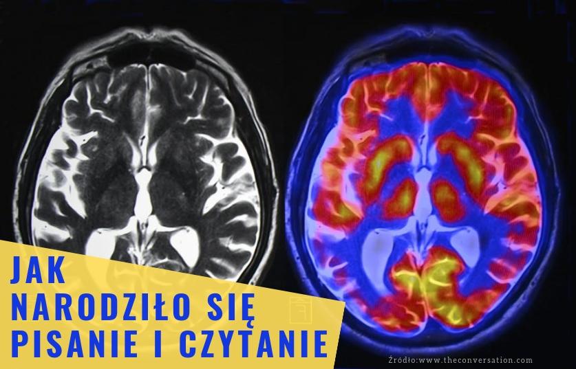 Jak narodziło się pisanie i czytanie - skan mózgu